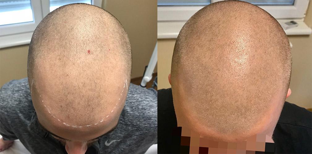 opadanje kose kod muskaraca pre i posle tretmana