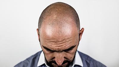 ostali tretmani genetska alopecija