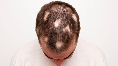 ostali tretmani opadanje kose na pecate