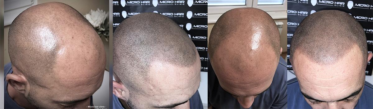 skalp mikro pigmentacija i opadanje kose kod muskaraca