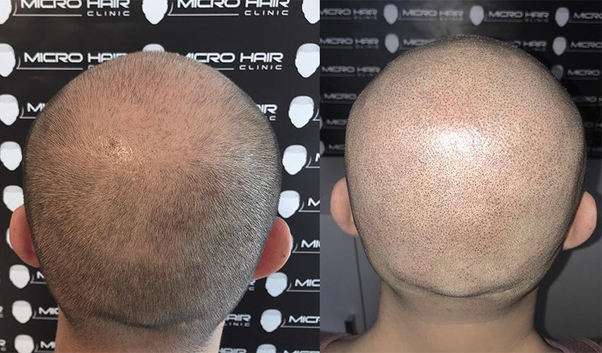 smp-i-transplatacija-kose-pre-i-posle-tretmana