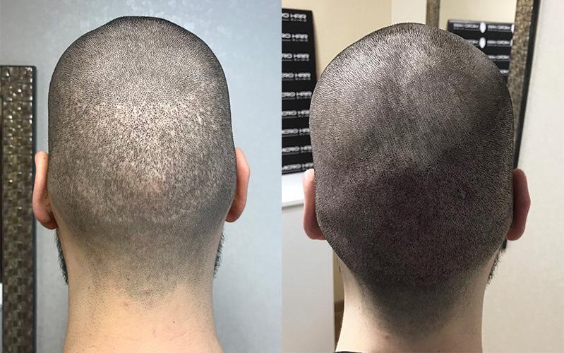 smp-i-transplatacija-kose-pre-i-posle