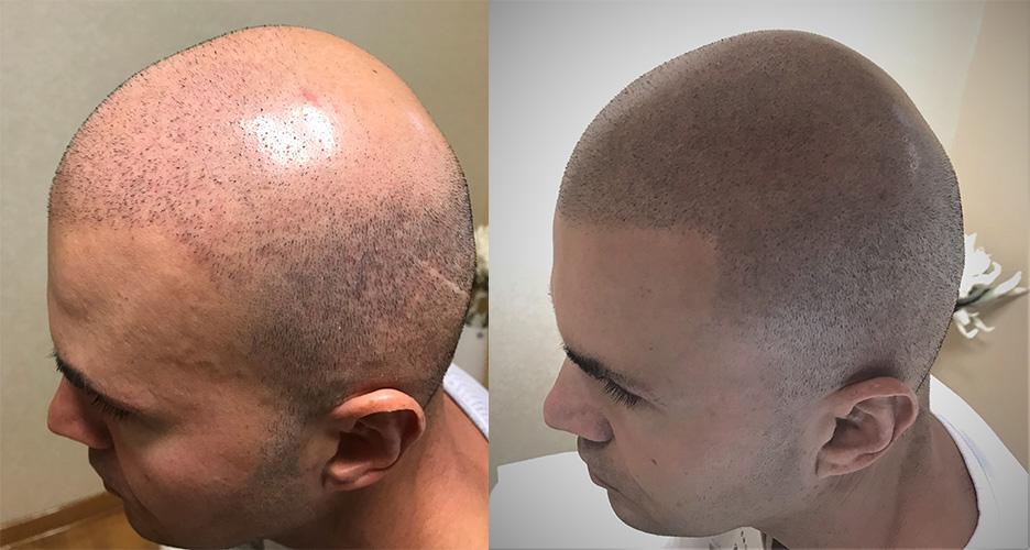 transplatacija-kose-pre-i-posle-SMP-tretmana-2