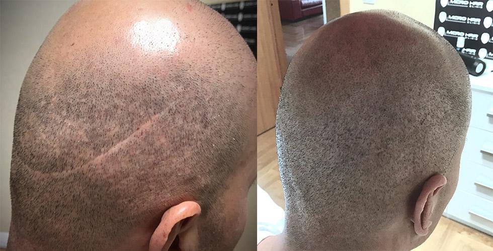 transplatacija-kose-pre-i-posle-SMP-tretmana