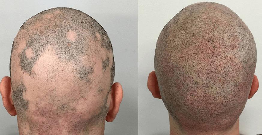 alopecia-i-smp-tretman-1