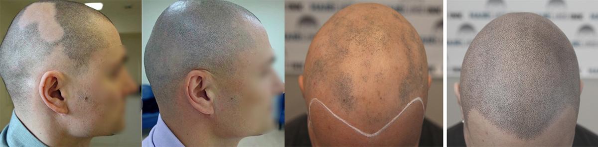 smp i opadanje kose na pecate